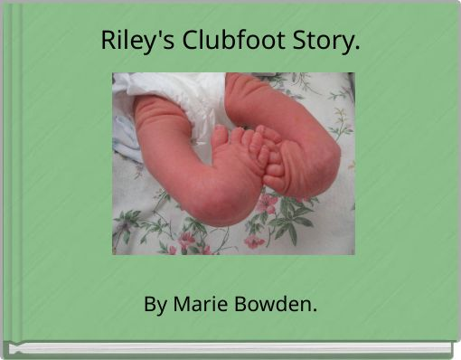 Riley's Clubfoot Story.