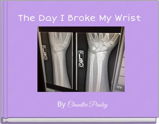 The Day I Broke My Wrist